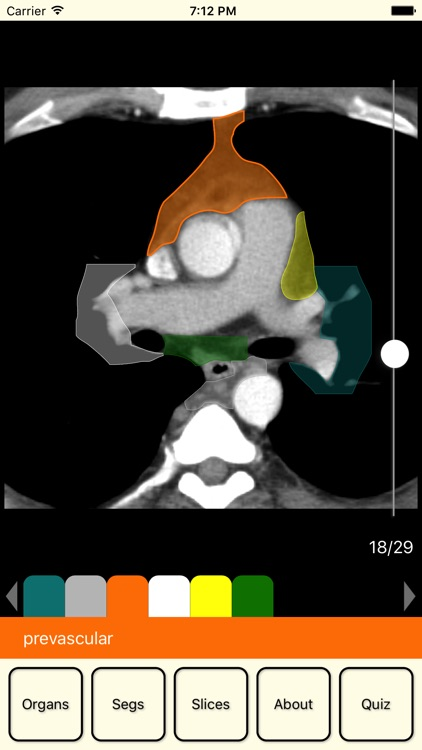 RadAnatomy screenshot-2
