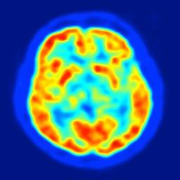 Neurosurgery: What's the data?