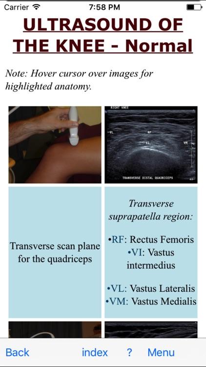 Ultrasoundpaedia