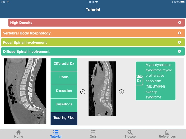 CTisus L-Spine Pathology screenshot-4