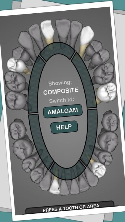 CavSim :  Dental Cavity Preps