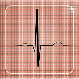 Cardiac-Stress-Test