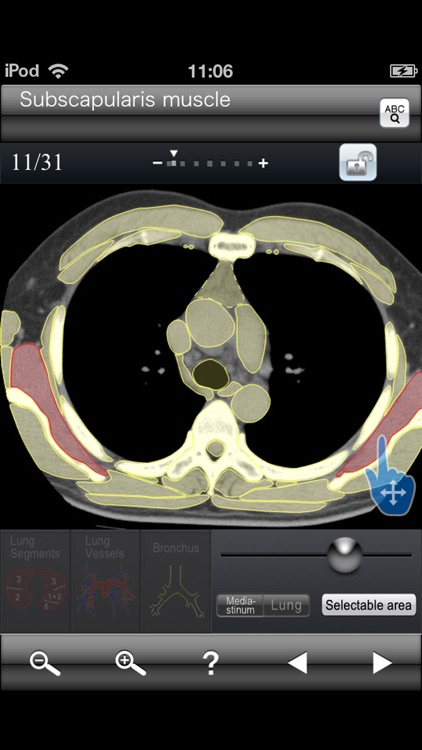 Chest CT Sectional Walker screenshot-4
