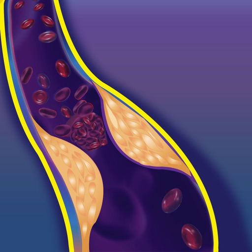 Int. VTE & Cancer Guidelines