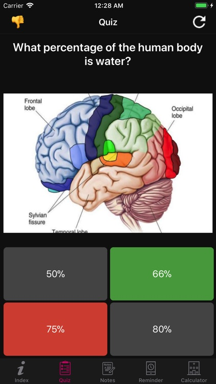 Human Brain Facts & Quiz 2000 screenshot-6