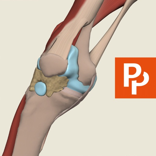 Knee: 3D Real-time