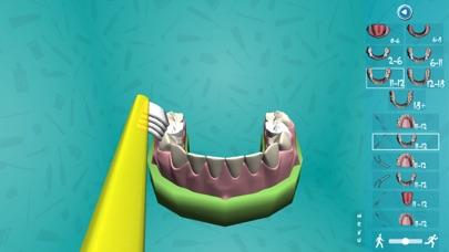 Cleaning Your Teeth 3 screenshot three