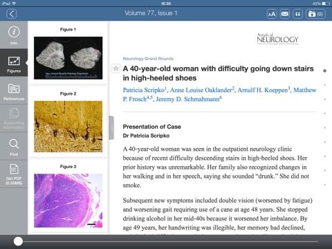 Annals of Neurology iPad