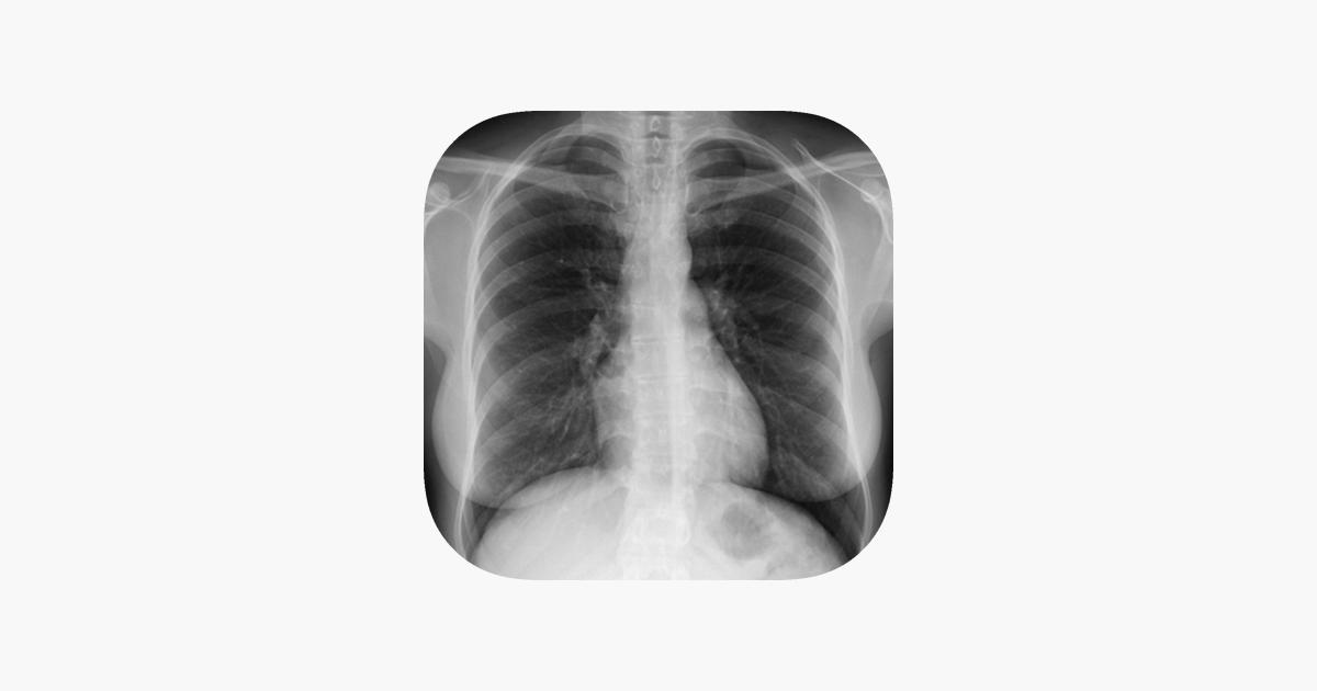 Atlas interactivo de anatomía radiológica en App Store