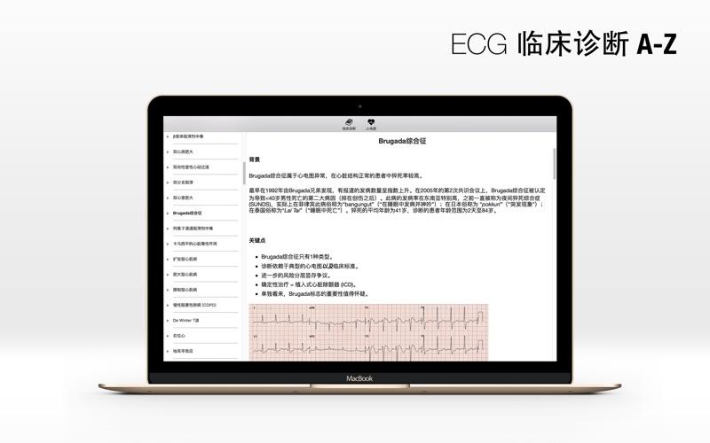 ECG A-Z