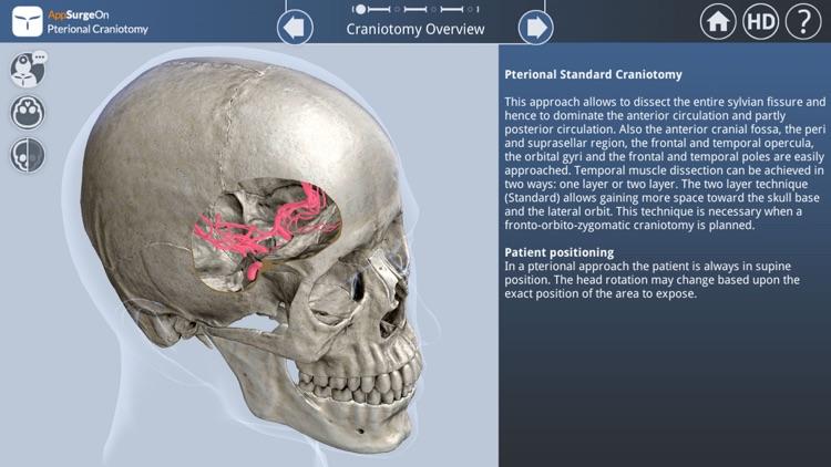 Pterional Craniotomy