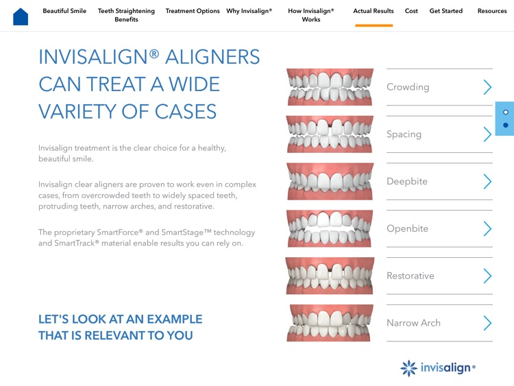 Invisalign Dentist Consultation App screenshot-3