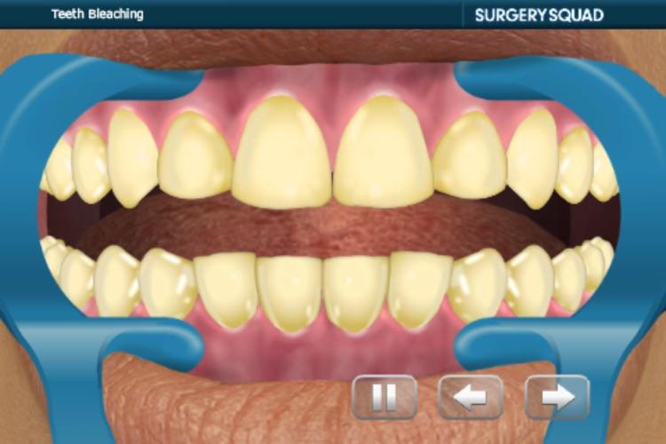 Virtual Teeth Whitening screenshot-4