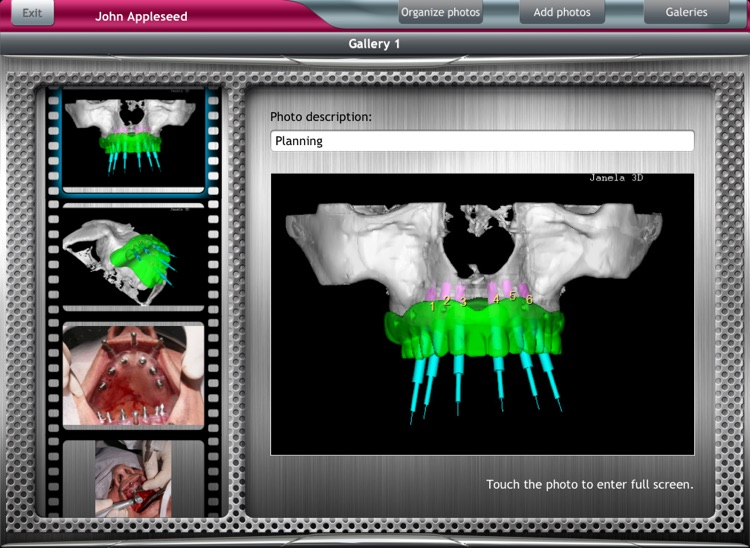 DentalChart Free screenshot-4