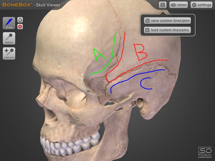 BoneBox™ - Skull Viewer screenshot-4