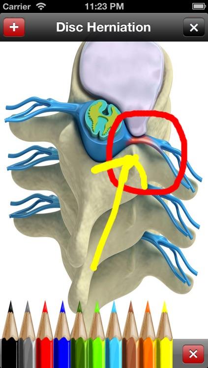 Med Sketch: Anatomy Drawing App