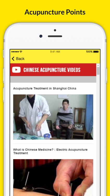 Chinese Acupuncture Therapy - Treatment For Weight Loss screenshot-3