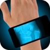 Simulator X-Ray Hand Fracture