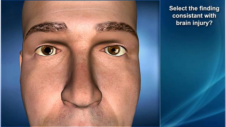 Medrills: Skull and Brain Injuries screenshot-3