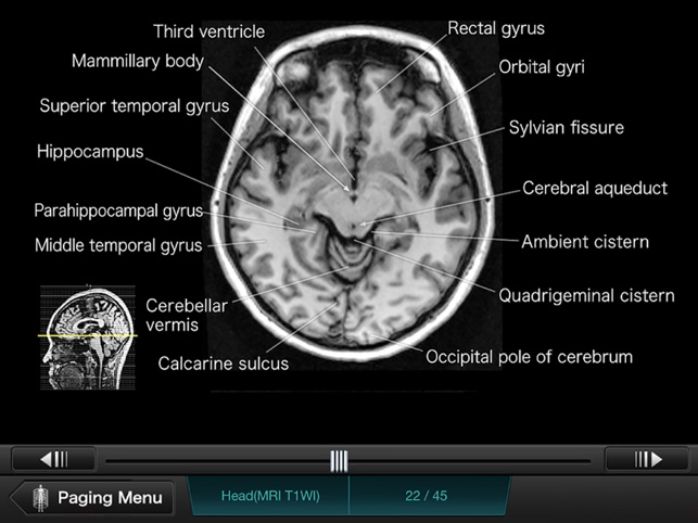 Interactive Ct And Mri Anatomy On The App Store