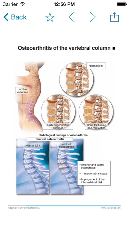 Miniatlas Diseases of the vertebral column screenshot-4