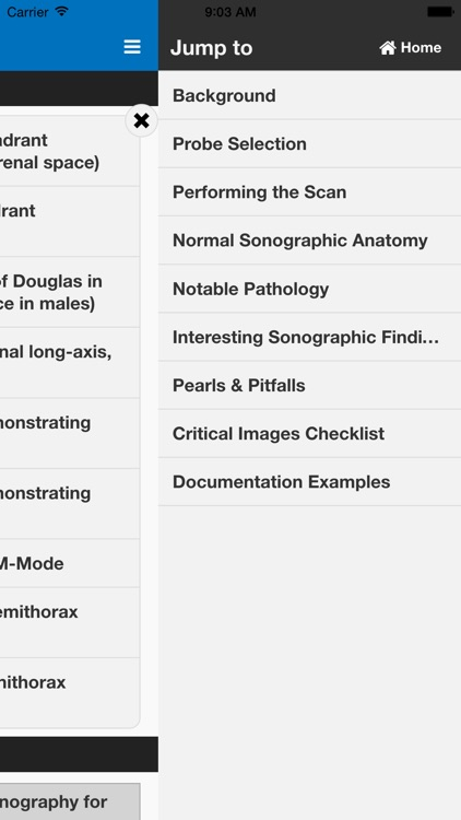 SonoSupport: a clinical emergency medicine and critical care ultrasound reference tool screenshot-3