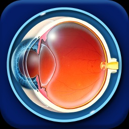 iOcutouch Eye Education