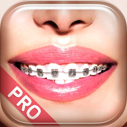 Braces Photo Booth Pro