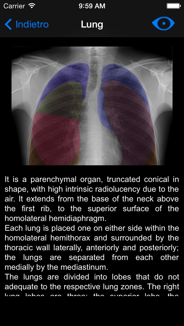 Chest X-ray Screenshot 3