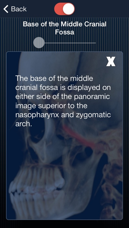 Dental Panoramic Radiology screenshot-4