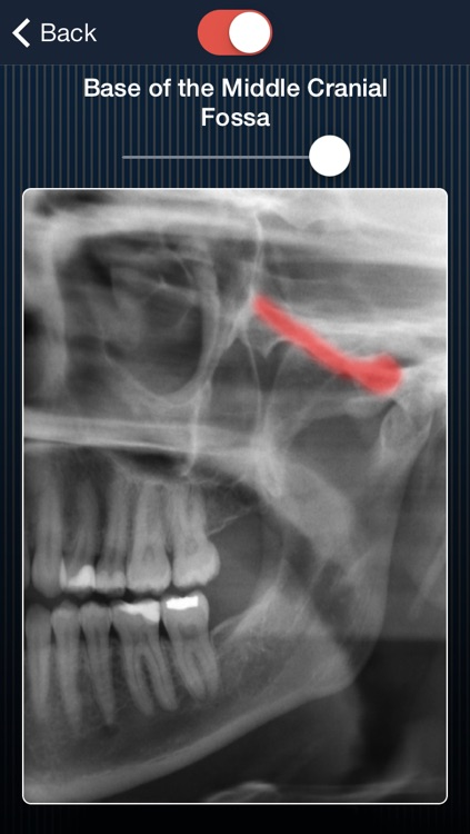 Dental Panoramic Radiology