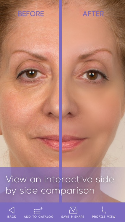 FaceLift: Cosmetic Surgery Simulator + Perfect Skin + Anti-Aging Visualizer screenshot-3