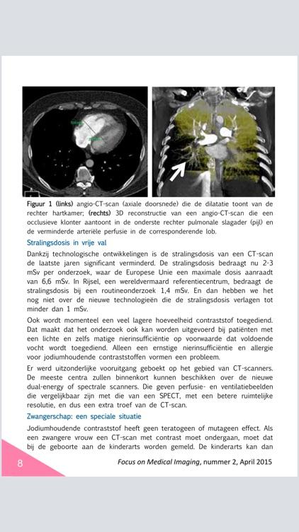 Focus on Medical Imaging