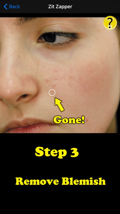 Zit Zapper Pro - Acne Remover screenshot-3