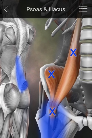 Muscle Trigger Points screenshot 2