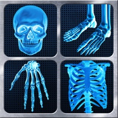 Activities of X-Ray Full Body Prank