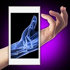 Activities of Xray Fracture Hand Prank