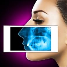 Activities of Xray Scanner Nose Prank