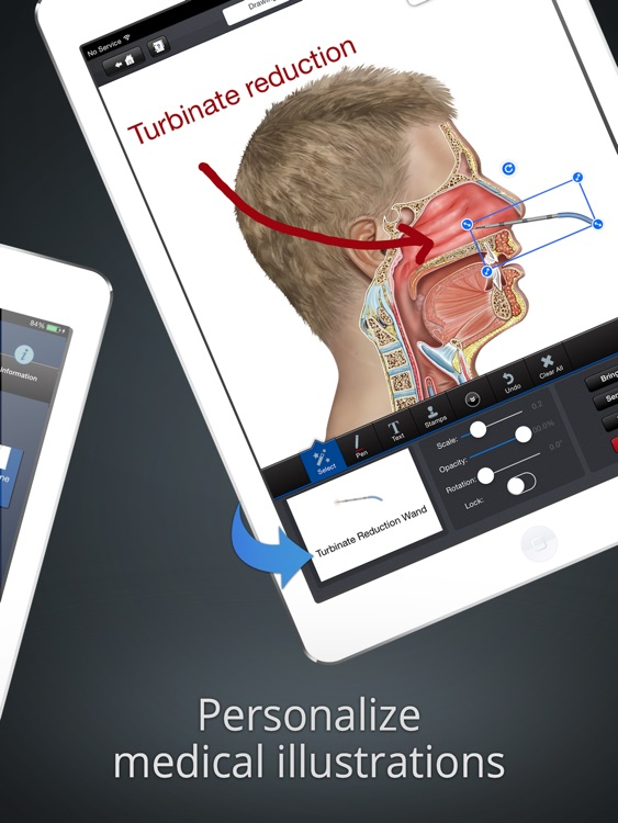 drawMD ENT - Patient Engagment by Explaining Medical Conditions on Illustrations for Ears Nose and Throat Otolaryngologists