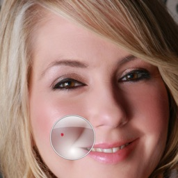 Zit Zapper Lite - Airbrush your face and remove pimples and acne