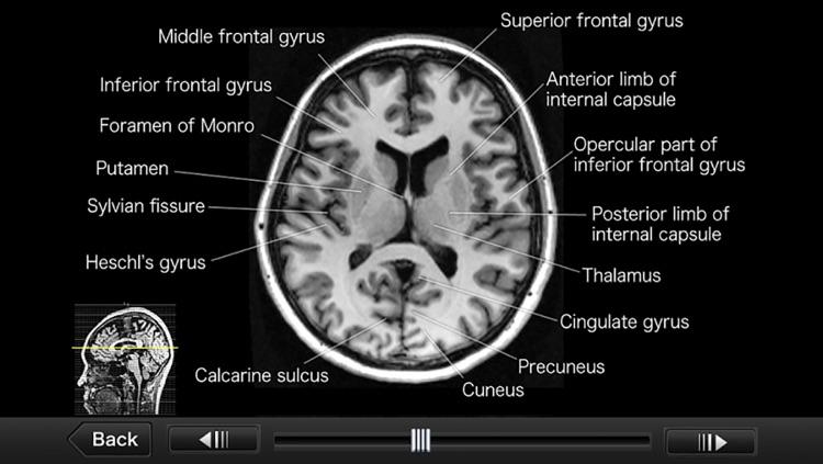Interactive CT and MRI Anatomy screenshot-4
