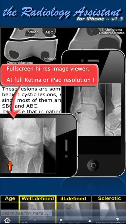 Radiology Assistant - Medical Imaging Reference