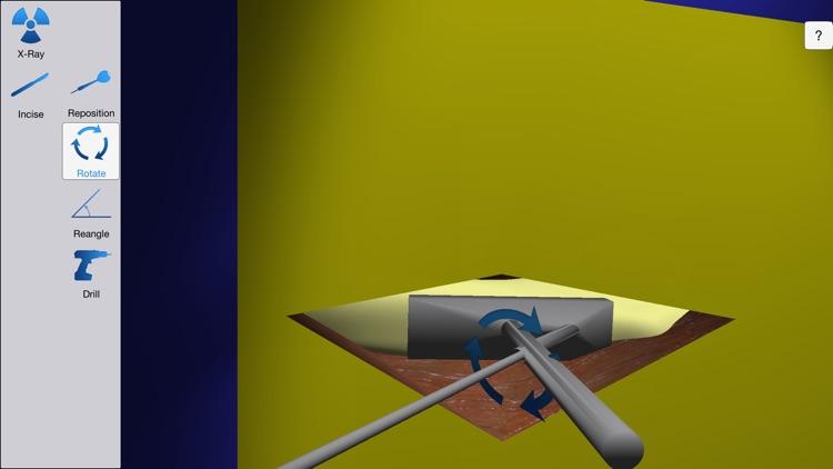Bonedoc screenshot-4