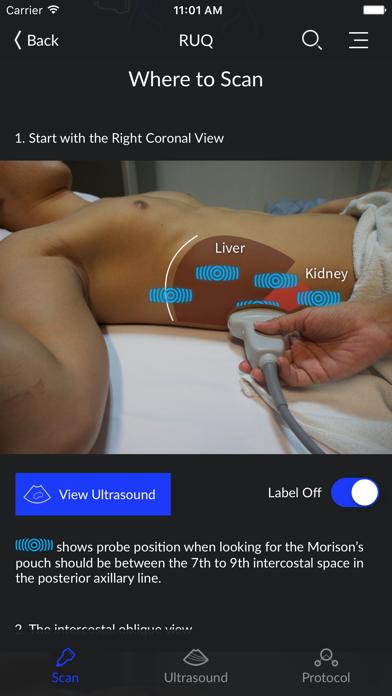 RESUS Ultrasound LITE screenshot two