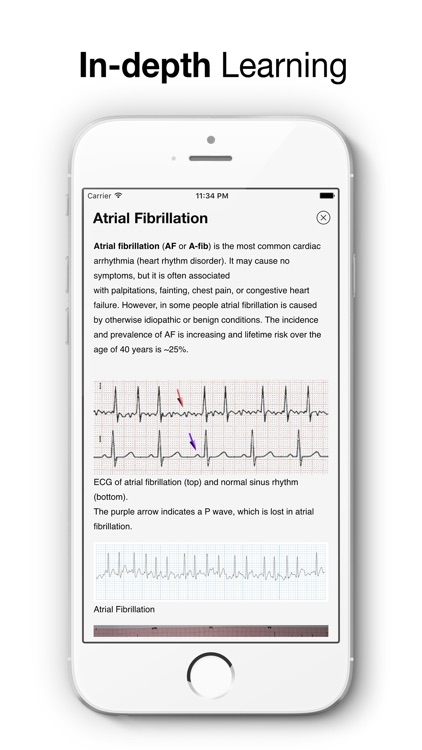 ECG Test Pro - Challenge Your Interpreting Skills screenshot-4