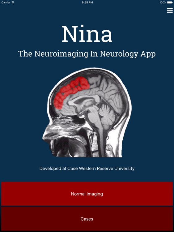 Nina Neuroimaging in Neurology