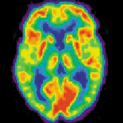 Radiology Core: Nuclear Medicine