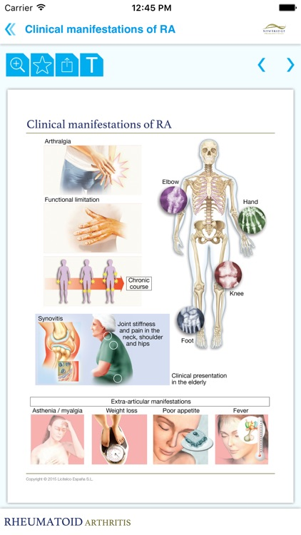 Rheumatoid arthritis Miniatlas screenshot-3
