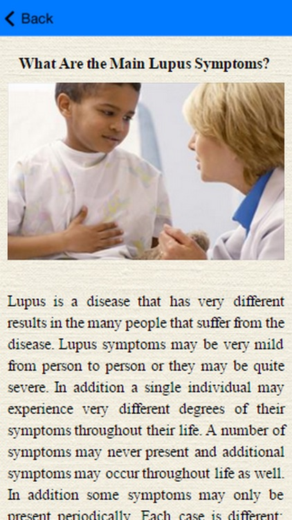Lupus Signs And Symptoms