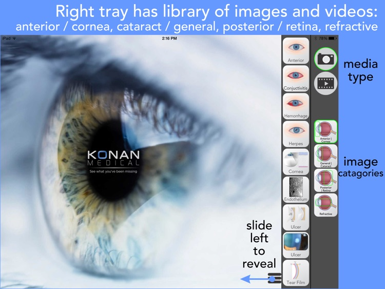 Ophthalmic Media Library